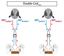 Towards assessing corticospinal excitability bilaterally Validation of a double coil TMS method 225x195